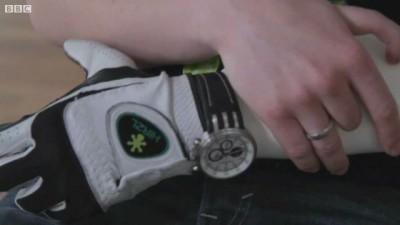 Бионическа рука вместо парализованной
