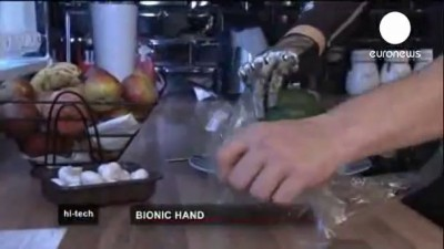 Бионический протез руки